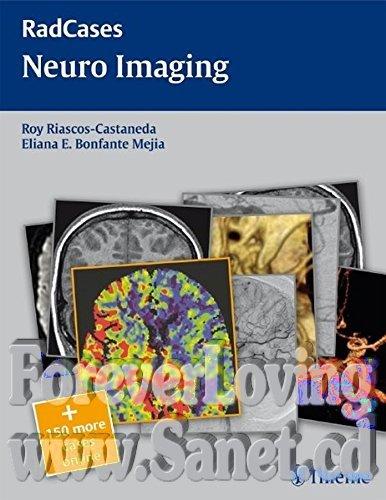 Radcases Neuro Imaging