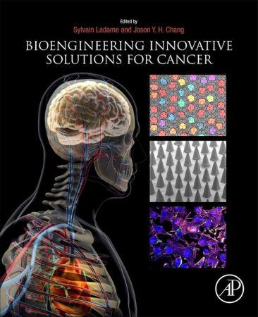 Bioengineering Innovative Solutions for Cancer